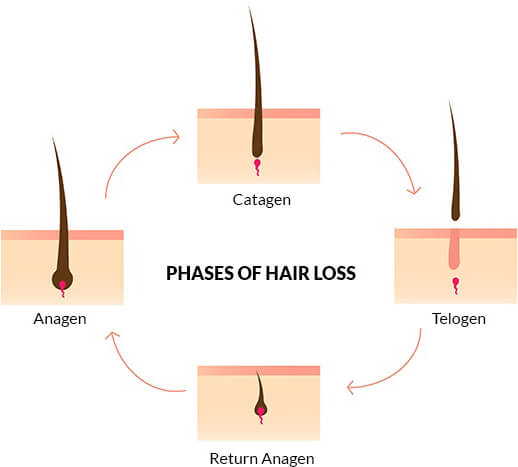 hair-loss-phases