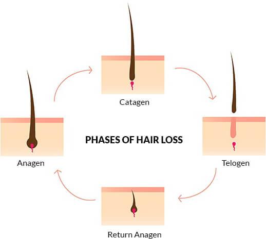 hair-loss-phases