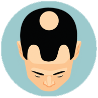 hair-loss-all-you-need-to-know--stages-of-hair-loss-for-men-4