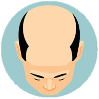 hair-loss-all-you-need-to-know--stages-of-hair-loss-for-men-7