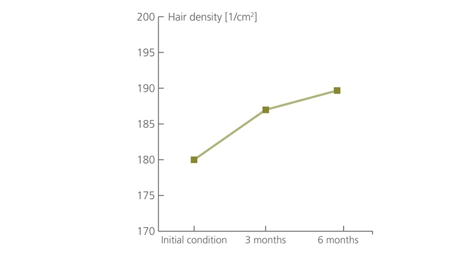 Veta-Hair-Growth-Technology-6_2x